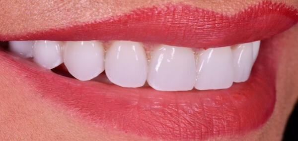 patient's teeth after treatment