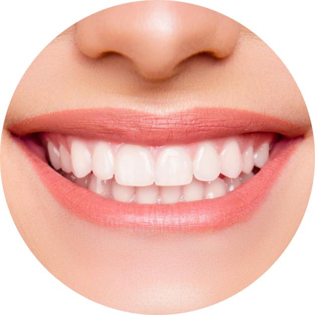 Close-up of female patient's smile
