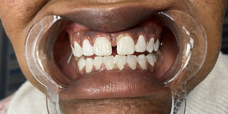 Patient's smile after teeth whitening