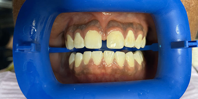 Patient's smile before teeth whitening